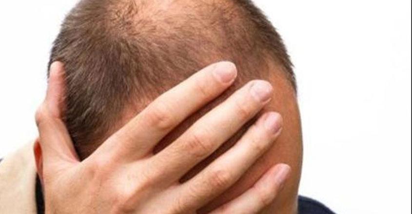 hair-transplant-15-03