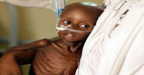 malnourished-child-nigeria